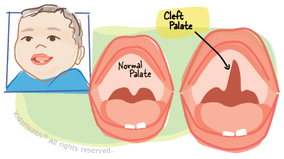 cleftpalate_a_enil