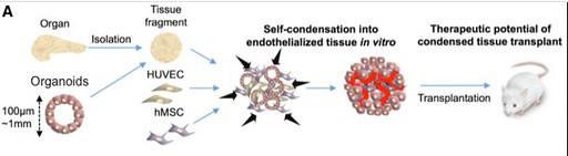 tratamiento de diabetes mellitus tipo 1 por células madre