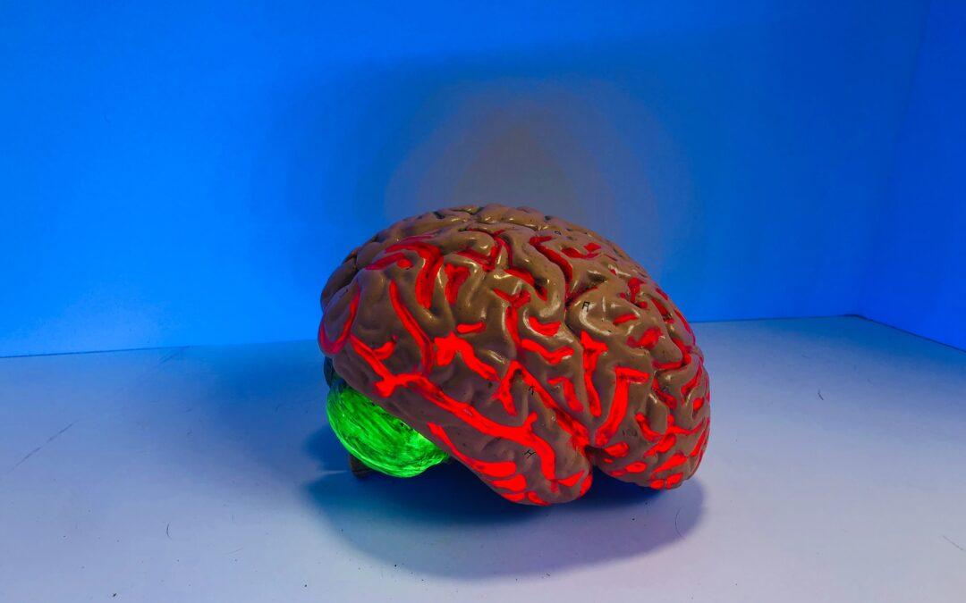 Terapia combinada de células del cordón umbilical y oxigenoterapia hiperbárica puede proteger los daños cerebrales tras una hemorragia intracerebral aguda