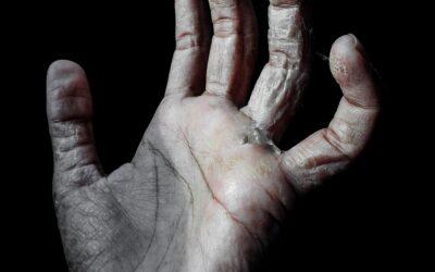 Investigación con células del tejido de cordón umbilical para tratar pacientes con artritis reumatoide